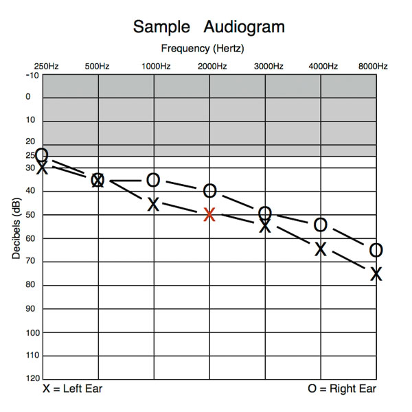 Audiogram sample